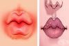 8 знака, с които устните ви показват, че имате проблем със здравето