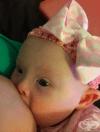 Кърмене на бебе със синдром на Даун