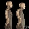 Тихият крадец - остеопорозата