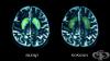 Как консумацията на захар вреди на мозъка