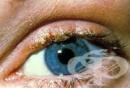 Алтернативно лечение на блефарит