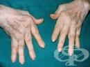 Алтернативно лечение на ревматоиден артрит