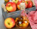 Ябълковият оцет успокоява разширени вени