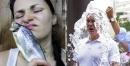 20 от най-странните алергии, които съществуват в света