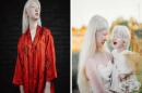Две сестри албиноси завладяват света със своята уникална външност