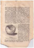 Презервативът на Бакалейников - съветският вариант на женски презерватив от 1934