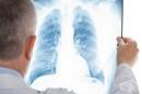 Хранене при пневмония