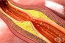 Хранене при атеросклероза