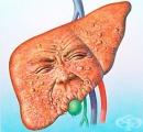 Хранене при стеатоза (затлъстяване) на черния дроб