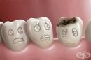 5 вредни за зъбите храни