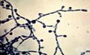 Паракокцидиоидомикоза