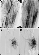 Q27.3 Периферна артериовенозна аномалия