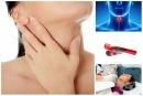E00-E07 Болести на щитовидната жлеза