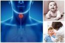 E00.1 Вроден йод-недоимъчен синдром, микседемен тип
