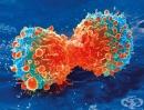 Българин направи революционно откритие в борбата с рака