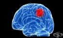 Създадоха модел на растящ мозъчен тумор в съд