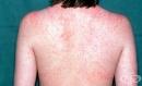 РЗИ – Благоевград съобщи за още 3 случая на заразени с морбили деца