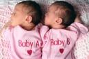 43-годишна пловдивчанка роди естествено близначки