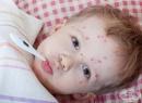 Бум на заболели от варицела във Враца и региона