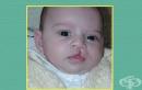 АЛА: Рискът децата с лицеви аномалии да не бъдат лекувани е напълно реален