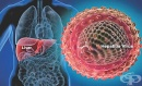 Дезинфектираха 59 къщи в Луковит заради заразата от хепатит А