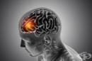 """Метастазите при различните видове рак """"избират"""" точно определени области в мозъка"""