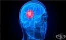 Генетичните рискове за поява на мозъчен тумор са различни при мъжете и жените