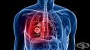Защо раковите клетки на белия дроб са неподвластни на химиотерапията