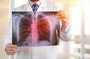Около 4200 българи годишно се сблъскват с диагнозата рак на белия дроб