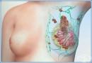 Клинична патология на гърдата