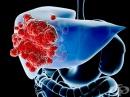 Тумори на черния дроб