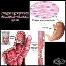 Гладки мускули на стомашно-чревния тракт