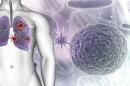 Защо пневмонията след заразяване с COVID-19 трае по-дълго