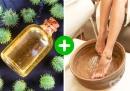 Правете вани от рициново масло срещу напукани пети