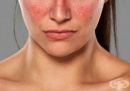 Разберете дали страдате от автоимунно заболяване чрез тези 10 признака