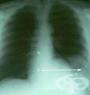 Рентгеново изследване на слезката (далака)