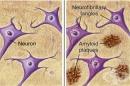Тест за прекурсор на бета амилоид протеин