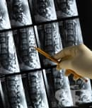 КТ на гръбначен стълб