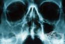 Рентгеново изследване на носната кухина