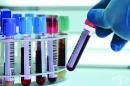 Имуноглобулин A (IgA) антитела срещу тъканната трансглутаминаза (IgA tTG)