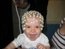 Електроенцефалограма (ЕЕГ)