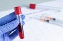 Гама-глутамилтранспептидаза (ГГТ, ГГТП)