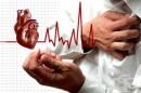 Образни изследвания при инфаркт на миокарда