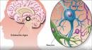 Дълбоката мозъчна стимулация – революционна терапия при невродегенеративни заболявания
