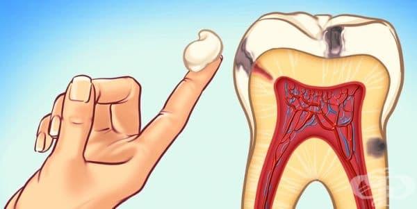 Почистете зъбите си с масло. Това е техника, която предотвратява развитието на кариеси чрез унищожаването на бактерии. Използвайте масло с антибактериални или антисептични свойства (сусамово или кокосово) вместо вода за уста в продължение на 20 мин.