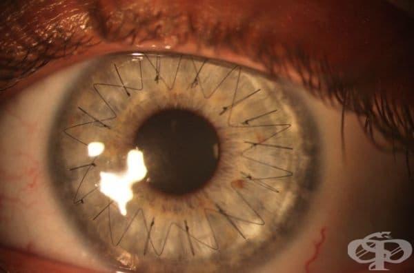 Очна ябълка след трансплантация на роговица.