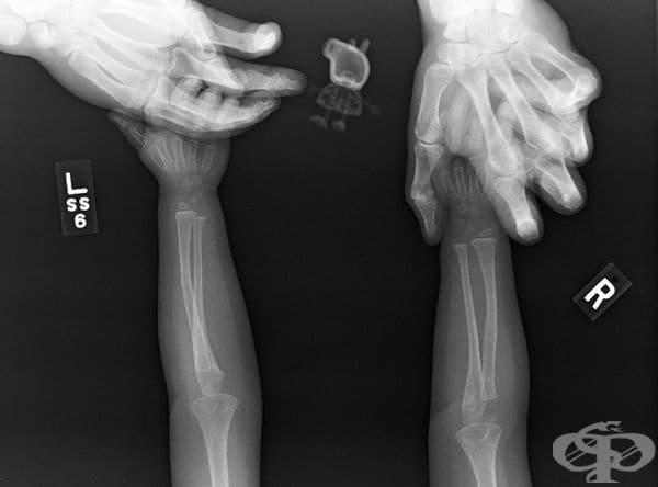 """""""Дъщеря ми не позволяваше да направим рентгенова снимка, без нейното прасенце."""""""