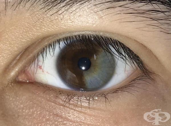 Една трета от окото на този човек е сиво.