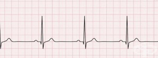 Брадикардия. Дефицитът на йод се свързва и със сърдечни проблеми или по-скоро брадикардия - твърде слаб пулс. Брадикардията може да доведе до замайване и дори припадък.