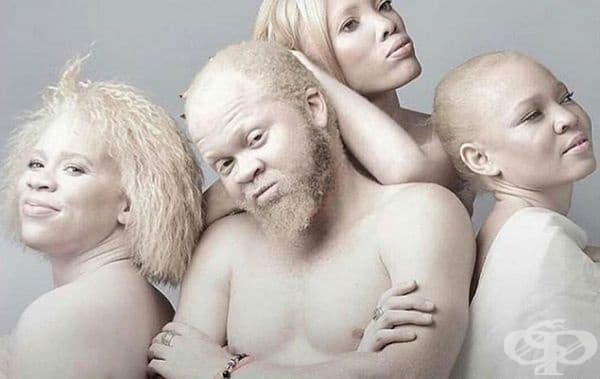 Семейство албиноси.